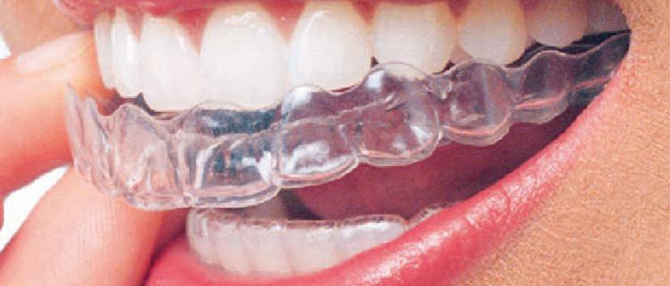 invisalign orthodontic service